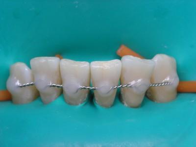 Шинирование зубов – особенности манипуляции